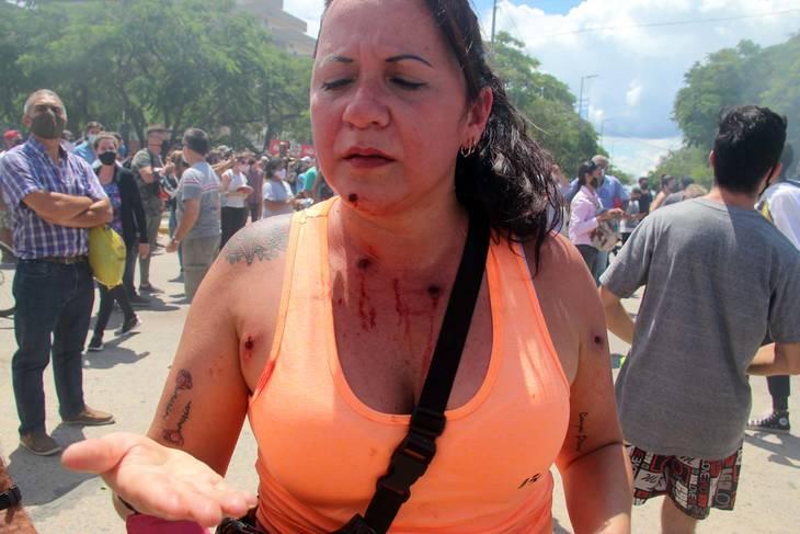 una mujer de mediana edad durante una manifestación muestra sus heridas por balas de goma en torso y rostro